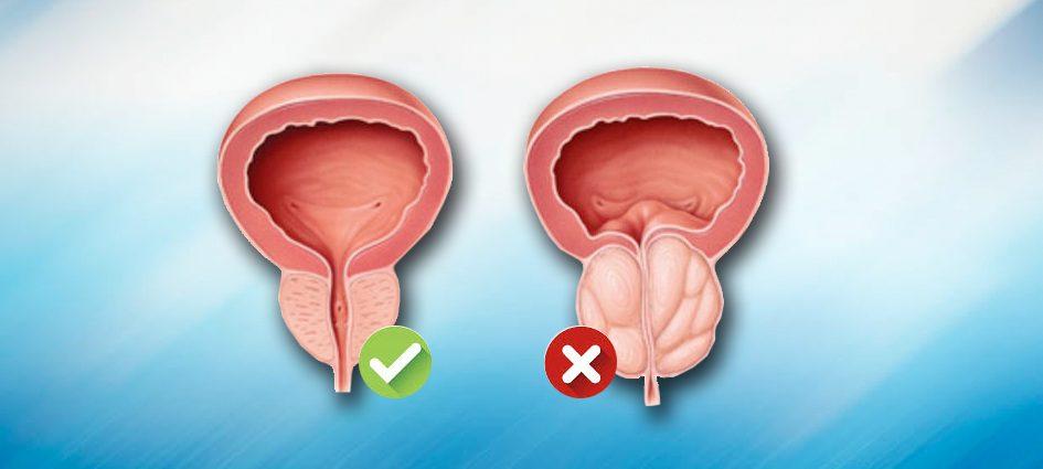 (BPH) İyi Huylu Prostat Büyümesi