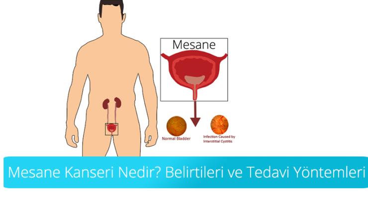 Mesane Kanseri ( İdrar Torbası Tümörü )